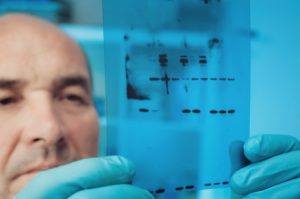 21361915 - scientist checks results of western blot experiment